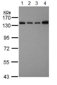 Western blot - Anti-SART3 antibody - C-terminal (ab155765)