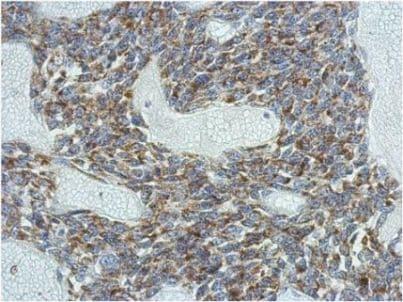 Immunohistochemistry (Formalin/PFA-fixed paraffin-embedded sections) - Anti-KCNG4 antibody (ab155772)