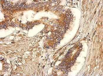 Immunohistochemistry (Formalin/PFA-fixed paraffin-embedded sections) - Anti-GEF H1 antibody (ab155785)