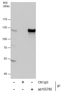 Immunoprecipitation - Anti-GEF H1 antibody (ab155785)