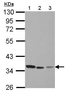 Western blot - Anti-Thymidylate Synthase  antibody (ab155795)