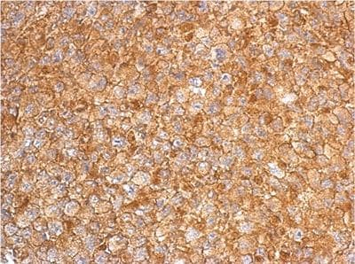 Immunohistochemistry (Formalin/PFA-fixed paraffin-embedded sections) - Anti-RGS6 antibody (ab155809)