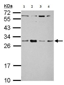 Western blot - Anti-TSR2 antibody (ab155810)