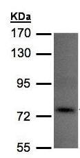 Western blot - Anti-TLK1 antibody (ab155823)