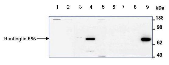 Western blot - Anti-Huntingtin antibody (ab155930)
