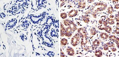 Immunohistochemistry (Formalin/PFA-fixed paraffin-embedded sections) - Anti-Rac1 antibody (ab155938)