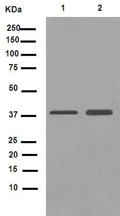 Western blot - Anti-CHST13 antibody [EPR9344] (ab155957)