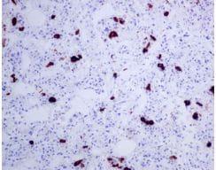Immunohistochemistry (Formalin/PFA-fixed paraffin-embedded sections) - Anti-TSH beta antibody [EPR8198] (ab155958)