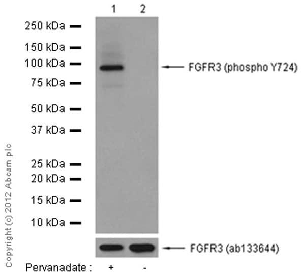 Western blot - Anti-FGFR3 (phospho Y724) antibody [EPR2281(3)] (ab155960)