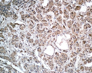 Immunohistochemistry (Formalin/PFA-fixed paraffin-embedded sections) - Anti-Growth Hormone antibody [EPR9524] (ab155974)