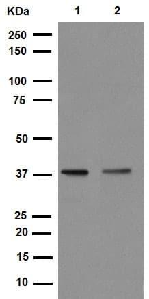 Western blot - Anti-Cdk7 (phospho T170) antibody [EPR6650(2)] (ab155976)
