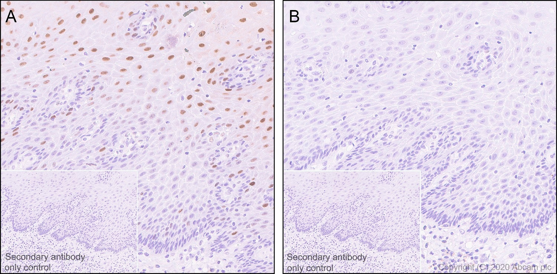 Immunohistochemistry (Formalin/PFA-fixed paraffin-embedded sections) - Anti-Nucleolin (phospho T84) antibody [EPR8080] (ab155977)