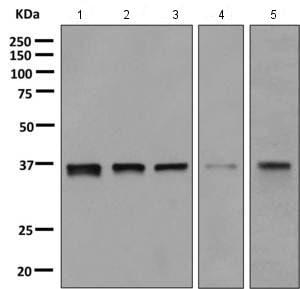 Western blot - Anti-E2F6 antibody [EPR11201] (ab155978)