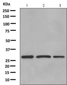 Western blot - Anti-AUH antibody [EPR11087(B)] (ab155980)