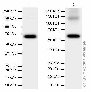 Western blot - Anti-Activin Receptor Type IA antibody [EPR4076(2)] (ab155981)
