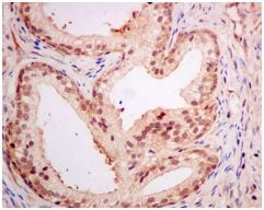 Immunohistochemistry (Formalin/PFA-fixed paraffin-embedded sections) - Anti-PSME1 antibody [EPR10968(B)] (ab155985)