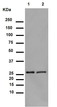Western blot - Anti-Hsp27 (phospho S82) antibody [EPR7278] (ab155987)