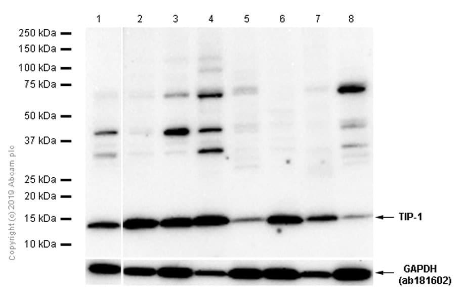 Western blot - Anti-TIP-1 antibody [EPR7900(2)] (ab155992)