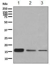 Western blot - Anti-RPS19 antibody [EPR10422] (ab155994)