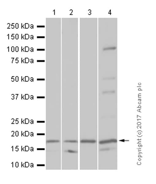 Western blot - Anti-SDHC antibody [EPR11035(B)] (ab155999)