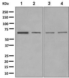 Western blot - Anti-GABA A Receptor beta 2/GABRB2 antibody [EPR10517] (ab156000)