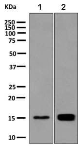 Western blot - Anti-Galectin 10 antibody [EPR11198(B)] (ab156005)