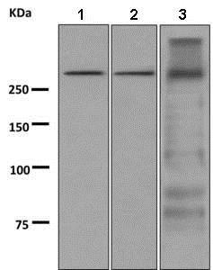 Western blot - Anti-Thyroglobulin antibody [EPR9730] (ab156008)