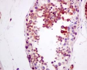 Immunohistochemistry (Formalin/PFA-fixed paraffin-embedded sections) - Anti-ZNRF2 antibody [EPR11399(B)] (ab156011)