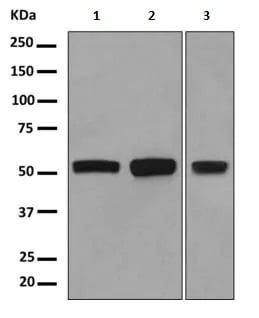 Western blot - Anti-FGFR1 Oncogene Partner antibody [EPR9929] (ab156013)