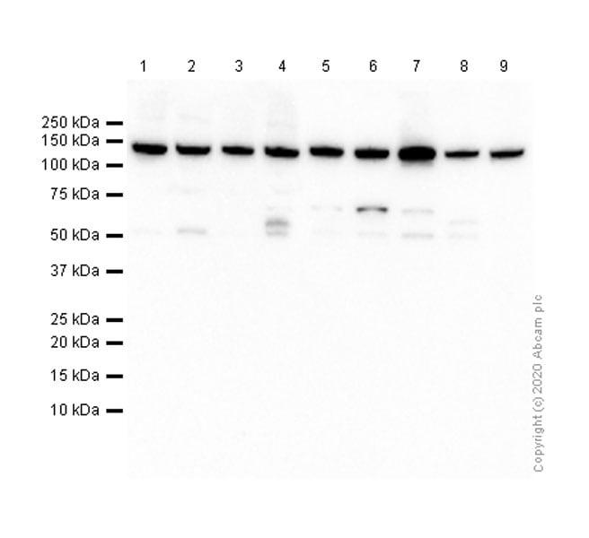 Western blot - Anti-CYFIP1 antibody [EPR10782] (ab156016)