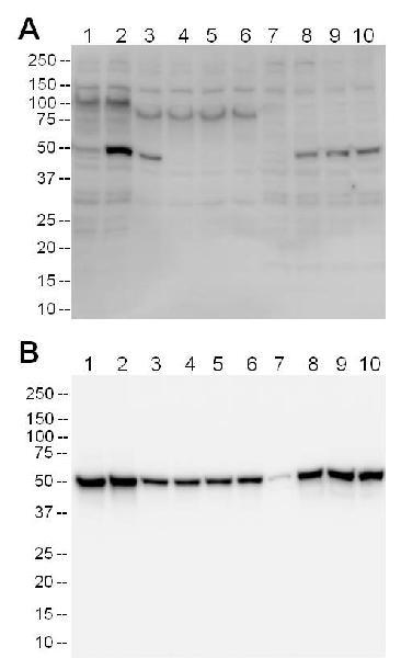 The detector antibody used in this kit specifically detects the phosphorylated p53 as determined by Western blotting.
