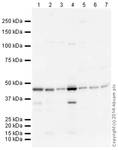 Western blot - Anti-ACADM antibody (ab156036)