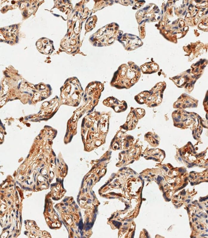 Immunohistochemistry (Formalin/PFA-fixed paraffin-embedded sections) - Anti-HBE antibody (ab156041)