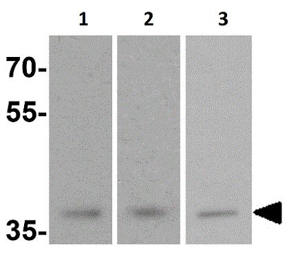 Western blot - Anti-MECR antibody - C-terminal (ab156268)