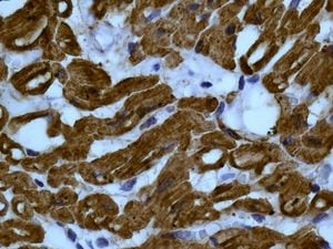 Immunohistochemistry (Formalin/PFA-fixed paraffin-embedded sections) - Anti-muscle Actin antibody [EPR8484] (ab156302)