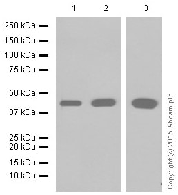 Western blot - Anti-muscle Actin antibody [EPR8484] (ab156302)