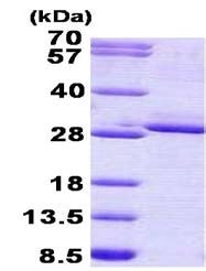 SDS-PAGE - Recombinant Human FGF17 protein (denatured) (ab156316)