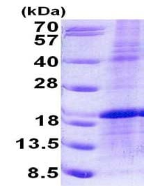 SDS-PAGE - Recombinant Human LMO1 protein (denatured) (ab156325)