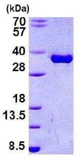 SDS-PAGE - Recombinant Human Torsin A/DYT1 protein (denatured) (ab156336)