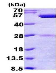 SDS-PAGE - Recombinant <em>E. coli </em> phrB protein (ab156352)