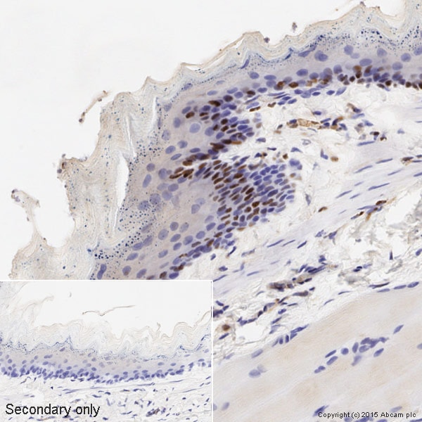 Immunohistochemistry (Formalin/PFA-fixed paraffin-embedded sections) - Anti-Cyclin D1 antibody [EPR2241] - BSA and Azide free (ab156448)