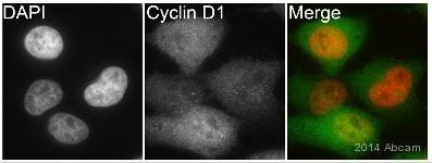 Immunocytochemistry/ Immunofluorescence - Anti-Cyclin D1 antibody [EPR2241] - BSA and Azide free (ab156448)