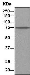 Immunoprecipitation - Anti-Dynein intermediate chain 1/DNAI1 antibody [EPR11222] (ab156567)