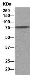 Immunoprecipitation - Anti-rSec6 antibody [EPR10812] (ab156568)