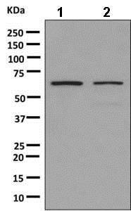 Western blot - Anti-hnRNP K antibody [EPR10933] (ab156570)