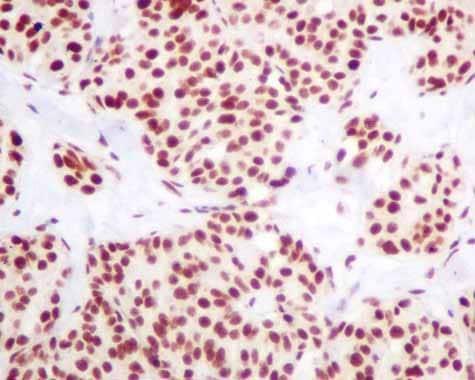 Immunohistochemistry (Formalin/PFA-fixed paraffin-embedded sections) - Anti-hnRNP K antibody [EPR10933] (ab156570)