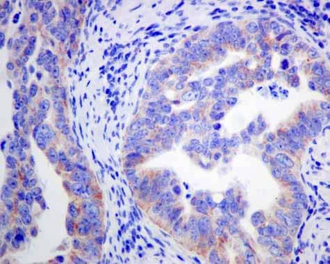 Immunohistochemistry (Formalin/PFA-fixed paraffin-embedded sections) - Anti-ACADS/SCAD antibody [EPR10862(B)] (ab156571)