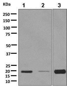Western blot - Anti-RAMP1 antibody [EPR10867] (ab156575)