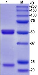 Western blot - Anti-Tau (phospho S198) antibody [EPR2400] - BSA and Azide free (ab156622)