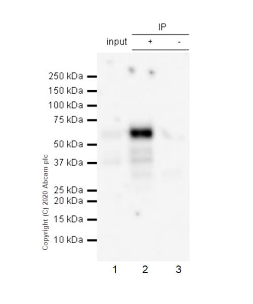 Immunoprecipitation - Anti-Tau (phospho S198) antibody [EPR2400] - BSA and Azide free (ab156622)